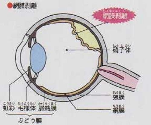 剥離 症状 網膜