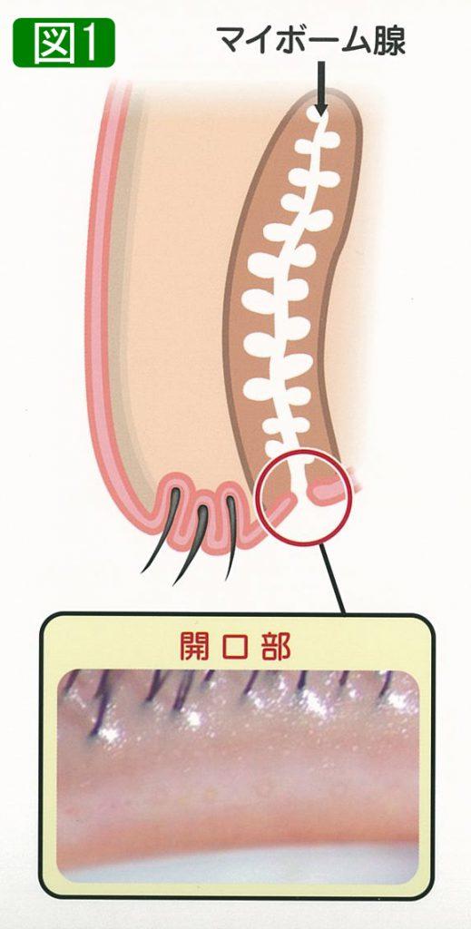 梗塞 マイボーム 腺